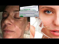 Acne – Skin Care Treatments, Tips & Advice Dark Spot Removal Cream, Cream For Dark Spots, Salicylic Acid Peel, Dark Spot Treatment, Best Dark Spot Corrector, Fairness Cream, Remove Acne, Makeup Tutorial For Beginners