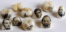 Irre! Casa Dentalis #zahnarztberlin verschönert Ihre Zähne, solange Sie noch im Mund sind: http://www.zahnarzt-herbst.de/index.php/zahnarzt-berlin/behandlung/aesthetische-zahnmedizin-schoene-zaehne.html