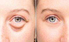 Evening Baggy Eye Solution That Removes Puffiness FAST They go by many names: bags dark circles or puffy eyes. No matter what you Dry Eyes Causes, Eye Infections, Old Makeup, Beauty Makeup, Eyes Problems, Puffy Eyes, Quites, Cool Eyes, Skin Care
