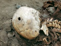 First Known Gunshot Victim in the Americas - Pierced by a Spanish musket ball during a 1536 uprising in Peru, this skull belonged to an Inca man who was the Western Hemisphere's first gunshot victim, archaeologists announced on June 20, 2007.