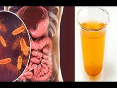 Unimaginable Toxins in Our Diet That Can Affect Our Health Ideas. Unutterable Toxins in Our Diet That Can Affect Our Health Ideas. Colon Cleanse Detox, Natural Colon Cleanse, Holistic Remedies, Health Remedies, Constipation Remedies, Best Apple Cider Vinegar, Toxic Foods, Best Diet Plan, Hcg Diet
