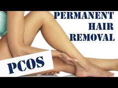 Guaranteed Permanent Hair Removal (PCOS/ Hirsutism, Electrolysis) - YouTube