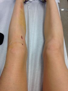 ACL 2 Weeks Post-Surgery - Blog with recap, what to expect, physical therapy, tips, etc.