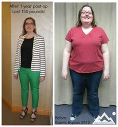 Loss 150pounds After Gastric Bypass Surgery
