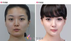 Korean Plastic Surgery Before and After Always interesting what you can find when you type in surgery and other related terms
