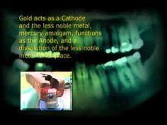 Quecksilber   The Strange Story of Dental Amalgam 2004 (mercury filling ...