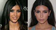 Kim Kardashian... She has changed a lot, due to her surgeries