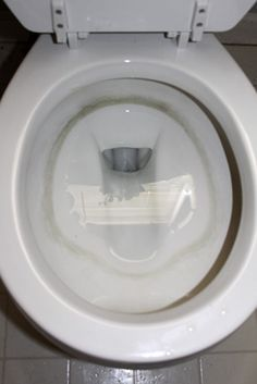 Hard Water Stains In The Toilet: Hard Water Stains In The Toilet