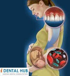 Dental Care Tips During Pregnancy