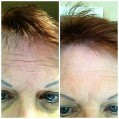 Don't let your forehead hold on to those deep expressions! Order Nerium now and smooth out your skin. 30 Day money back guarantee!  www.facebook.com/irelandredheadtuesday