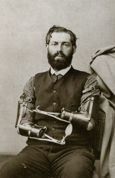 The prevalence of amputation during the Civil War created a need for prosthetic devices. In 1866 more than half of the entire budget for the state of Mississippi was expended on artificial arms and legs. Because demand often outstripped supply, some veterans designed their own mechanical limbs of metal and leather; one of the most famous was Union veteran Sam Decker, who could eat and write relatively easily with the prosthetic arms he and his wife created.  Photographer unknown, circa 1866