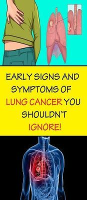 WATCH OUT: EARLY SIGNS AND SYMPTOMS OF LUNG CANCER YOU SHOULDN'T IGNORE!