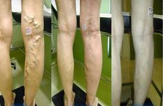 How To Treat Varicose Veins Using a Mixture of Apple Cider Vinegar, Carrots and Aloe Vera Varicose Vein Remedy, Varicose Veins, Apple Cider Vinegar, Health Problems, Skin Problems, Aloe Vera, Natural Health, Health And Beauty, Natural Remedies