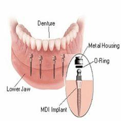 Effective Procedure Of Denture Implants waterbrookdental.com