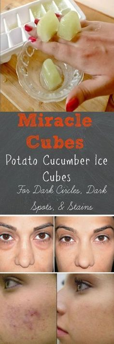 Just Learn this Miracle Cubes! Potato Cucumber Ice Cubes For Dark Spots and Acne Scars - 16 Recommended Skin Care Routine Tips and DIYs for A Healthy Glow This Summer Beauty Care, Beauty Skin, Health And Beauty, Face Beauty, Natural Health Tips, Natural Cures, Diy Skin Care, Skin Care Tips, Organic Skin Care