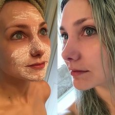 9 megfizethető gyógyszertári termék, ami jobb, mint a legmenőbb kozmetikumok Aspirin Mask, Beauty Skin, Hair Beauty, Mint Hair, Prevent Ingrown Hairs, Bare Face, Skin Elasticity, Cosplay Makeup, Tips Belleza