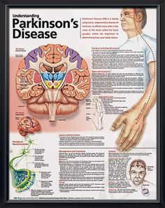 Understanding Parkinson's Disease anatomy poster lists symptoms such as decreased/loss of sense of smell, depression, sleep problems, etc. Neurology for doctors and nurses.