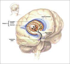 Test sulle ghiandole salivari per diagnosi sul Parkinson