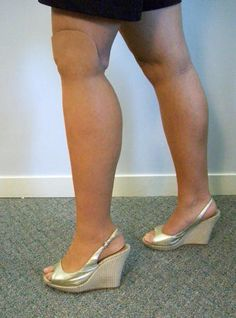 Realistic Artificial Leg Prosthetic for Amputees