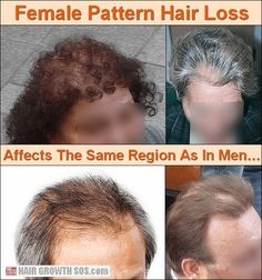 Balding Remedies Female Pattern hair loss in women affects the same area as in men but usually causes thinning not baldness. Learn all about How To Grow Your Hair Faster, How To Grow Natural Hair, Hair Loss Causes, Prevent Hair Loss, New Hair Growth, Hair Growth Tips, Androgenetic Alopecia, Vitamins For Hair Loss, Best Hair Oil