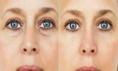 Baking Soda Mask Against Eye Bags, Dark Circles And Swollen Eyelids – Recipe