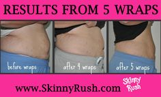 These results are real. It Works Body Wraps are designed to gradually work over the next 72 hours after application to tone & tighten your skin while shrinking fat.