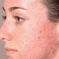 TOP 5 HERBAL REMEDIES FOR ACNE