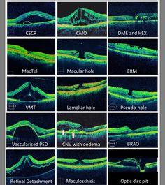 OCT Macular Lesions Optometry Humor, Optometry School, Opthalmic Technician, Optical Coherence Tomography, Eye Study, Eye Anatomy, Eye Facts, Eye Exam, Health