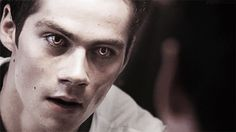"Requests open — ""Stiles, your eyes!"" ¨ ""I'm fine"" 