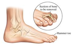 Hammer Toes Basics Hammer toes are classified as a form of lesser toe (digits 2–5) deformities. Description Plantar flexion deformity of the proximal interphalangeal joint (PIPJ) with varying degrees of hyperextension of the metatarsophalangeal (MTP) and distal interphalangeal (DIP) joints (1). Occurs primarily in sagittal plane