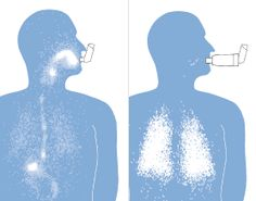 Inhaler vs. Inhaler + Spacer:  Spacers allow the medicine to get down into the lungs where the problem is, instead of coating our mouths when we just use the pump alone.