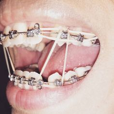 #braces #girlswithbraces #metalbraces #elastics #hooks