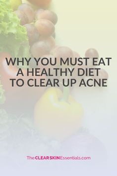 The only way you are truly going to get lasting results clearing up adult acne is by getting healthy. Having a super healthy diet is how you start!