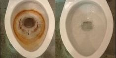 Ideas for toilet cleaning hacks hard water stains Household Cleaning Tips, Toilet Cleaning, Bathroom Cleaning, House Cleaning Tips, Diy Cleaning Products, Cleaning Hacks, Household Cleaners, Clean Toilet Bowl Stains, Hard Water Stains