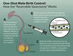 Reversible vasectomy, another option for male contraception.
