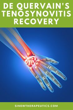 De Quervain's Tenosynovitis Recovery - You may feel hard nodules like sand in the tissue, indicating accumulation, calcification, and adhesions, which all cause pain, stiffness, and instability. Learn more at SinewTherapeutics.com