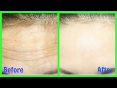 How to Remove Wrinkles from Face & Forehead naturally    Home Remedy - YouTube