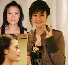 Community Post: 31 Crazy Before And After Photos Of Korean Plastic Surgery
