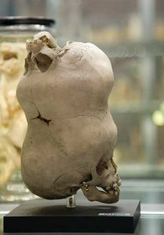 Hunterian Museum : London, England  The skull of a young boy with a second imperfect skull attached to its anterior fontanelle.   Sent to John Hunter from Bengal, India in the late 1780s