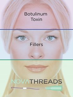 Do you have sagging skin in the face or neck? Thread lift is an excellent and effective technique for the tightening sagging skin Facial Esthetics, Non Surgical Facelift, Thread Lift, Instant Face Lift, Dermal Fillers, Botox Fillers, Face Fillers, Laser Surgery, Brow Lift