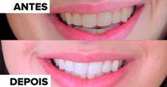 Método natural que torna os seus dentes mais brancos