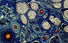 Skin Cells Under Microscope Human skin cel