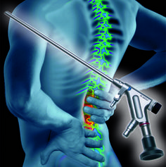 Endoscopic Spine Surgery Allen, TX - Contact At (972) 727-9995