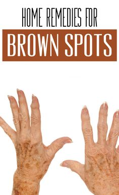 How to get Rid Of Brown Spots on Face Sun Spots On Skin, Black Spots On Face, Brown Spots On Hands, Age Spots On Face, Spots On Legs, Dark Spots, How To Get Rid, How To Remove, Spots On Forehead