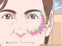 """How to Treat an Ocular Migraine. Ocular or """"classic"""" migraines are severe headaches accompanied by changes in vision (seeing flashes of light or shadows, or an """"aura""""). Ocular Migraine Causes, Occular Migraine, Visual Migraine, Chronic Migraines, Migraine Relief, Pain Relief, Essential Oils For Migraines, Severe Headache, Health"""