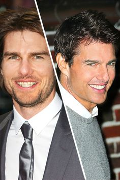 Famous Faces with Braces - Actor Tom Cruise got braces at age 40