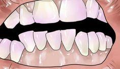 Milioni di persone hanno il tartaro sui denti. Proprio così, se vi affligge questo problema, dunque, sappiate che siete in buona compagnia. La placca batte