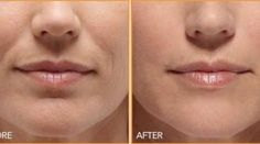 Yoga face workouts can erase mouth wrinkles and trim smile folds very effectively. Utilizing face toning exercises to decrease laughter wri. Bio Cosmetics, Personal Beauty Routine, Wrinkle Remedies, Magical Makeup, Wrinkle Remover, Makeup For Beginners, Beauty Recipe, Belleza Natural, How To Get Rid