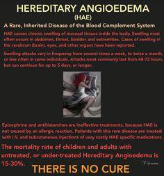 HAE, Hereditary Angioedema, Rare, Inherited Disease, Chronic Illness