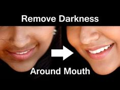 How to Get Rid of Dark Skin Around Mouth / Remove Hyperpigmentation, Dark Upper . - Care - Skin care , beauty ideas and skin care tips Dark Skin Around Mouth, Darkness Around Mouth, Get Rid Of Tan, How To Get Rid, How To Remove, Dark Skin Tone, Uneven Skin Tone, Beauty Tips For Skin, Beauty Ideas